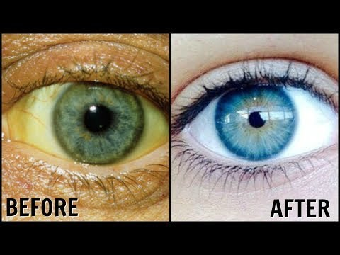 Clear Eyes Get Clean White And Sparkling Eyes Home Remedies  Home Remedies for Clear Eyes