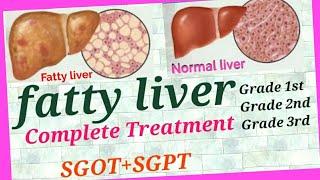फैटी लिवर ग्रेड 1st,2nd,3rd का इलाज, 100 % सलूशनof Fatty liver, फैटी लिवर का घरेलू इलाज, फैटी लिवर ।