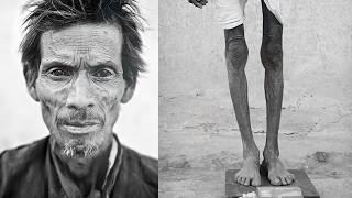 55 साल के इंसान ने अंधविश्वास पर विश्वास किया और ये हुआ उसके शरीर के साथ Medical Science Mystery