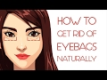 What Your Eye Bags Tell You About Your Health