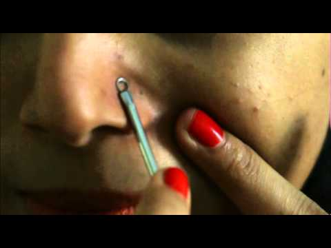 How To Treat Blackheads:Best Way To Get Rid Of Blackhead/Simple Trick