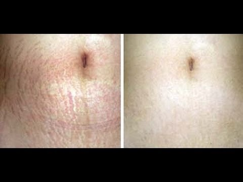 GET RID OF STRETCH MARKS-  How to get rid of stretch marks FAST!