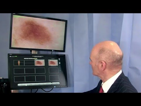 Mole Mapping & Skin Cancer Screening Check For Suspicious Moles At Rosshall Hospital Glasgow