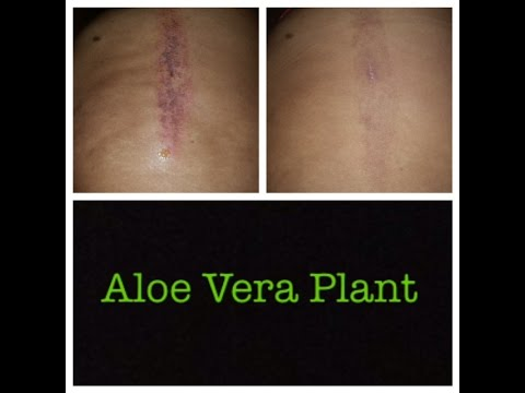 Aloe Vera gel for burns and scars