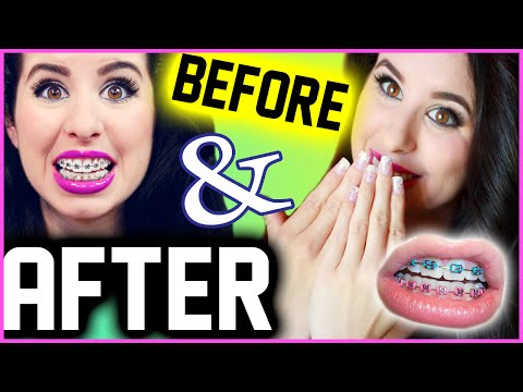Getting My Braces Off: Before & After! | My Long, Painful & Bloody Experience!