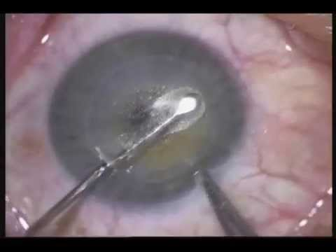 ReLEx SMILE: Least invasive technique for least invasive laser eye surgery