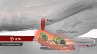 CERAGEM Reflax : Intelligent Spine Scanning (Part 2 of 6
