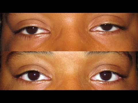 how to get rid of a saggy eyelids for good.