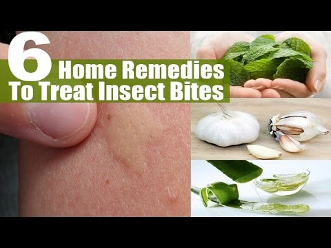 How To Get Rid Of A Mosquito Bite With Home Remedies.