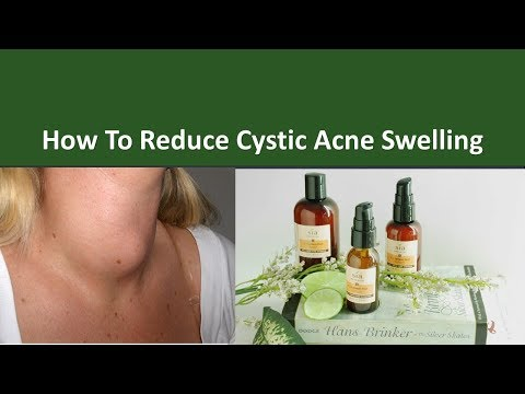How to Reduce Cystic Acne Swelling|Place treat your acne with tea tree oil