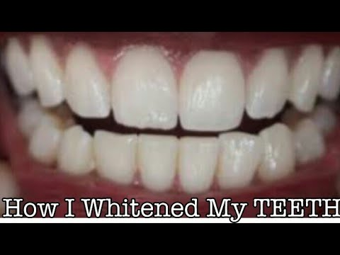 How I Whitened My TEETH At Home / Whiten Yellow Teeth In Three Minutes/ How To Remove Dental Plaque