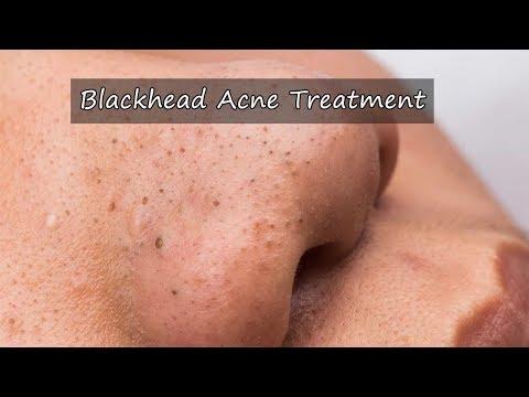 Blackhead Acne Treatment - How To Treat Blackhead and Acne