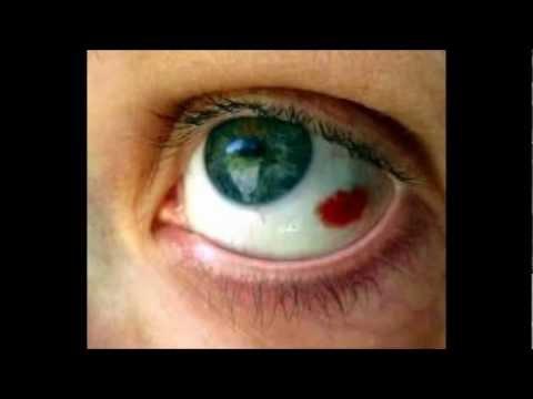 Red Spot on my Eye