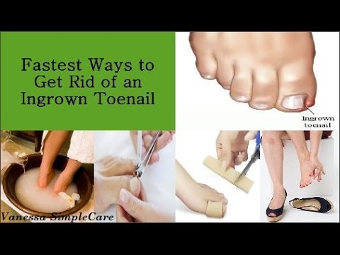 How To Get Rid Of Ingrown Toenails Safely And Easily At Home Naturally