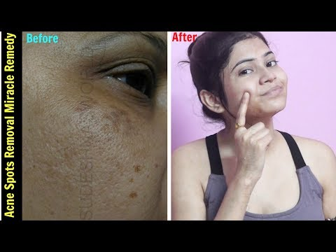 Miracle Acne Scars Removal Treatment | Remove DARK SPOTS , BLACK SPOTS & ACNE SCARS | 100% Effective