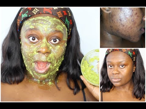 REMOVE DARK SPOTS, TIGHTEN SKIN & PREVENT ACNE USING THIS FACE MASK | DIY AVOCADO FACE MASK