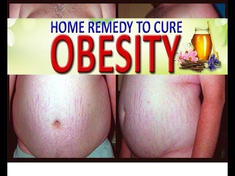 HOME REMEDY TO CURE OBESITY  II मोटापे का घरेलू उपचार II