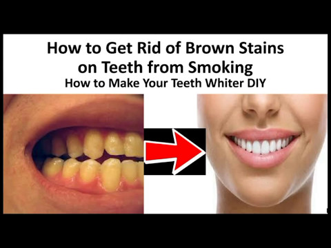 How to Get Rid of Brown Stains on Teeth from Smoking -  How to Make Your Teeth Whiter DIY