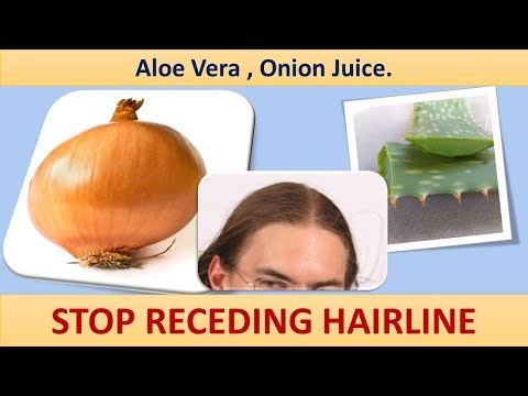 HOW TO STOP RECEDING HAIRLINE AND REGROW HAIR NATURALLY - Aloe Vera, Onion Juice