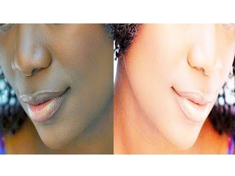How to Remove Lips Corner Darkness/Rid of Dark Black Skin Around Mouth