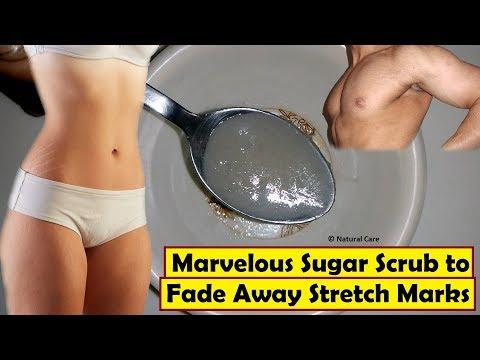 Marvelous Sugar Scrub to Fade Away Stretch Marks