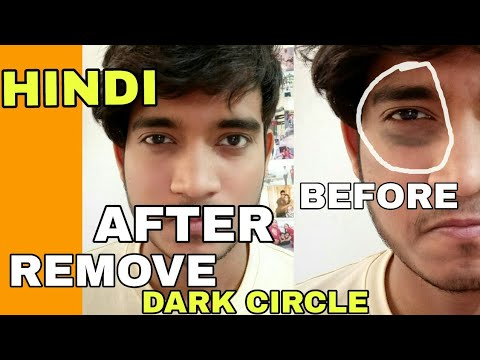 How To Remove Dark Circle | Hindi | Remove Dark Circle Naturally
