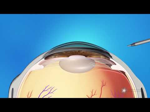 What is Refractive Lens Exchange Surgery?