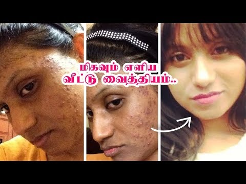முகப்பரு, கரும்புள்ளிகளை அகற்றும் எளிய வீட்டு வைத்தியம்   Remove Pimple & Black Marks on Face