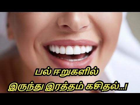 Home Remedy to Get Healthy Gums and Teeth in Tamil - How to Get Strong Teeth and Gums in Tamil.