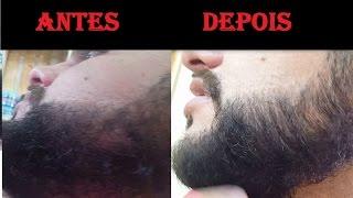 Alisamento Natural Para Barba