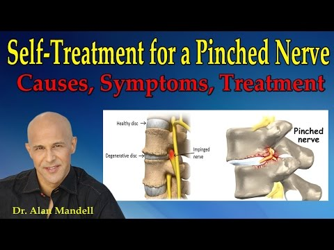 Self-Treatment for a Pinched Nerve (Causes, Symptoms, Treatment) - Dr Mandell