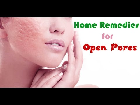 Home Remedies for Open Pores | how to cure open pores?