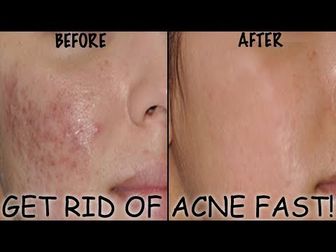GETTING RID OF ACNE & OILY SKIN FAST & EASILY | Wow Acne Deep Impact Treatment Kit review.