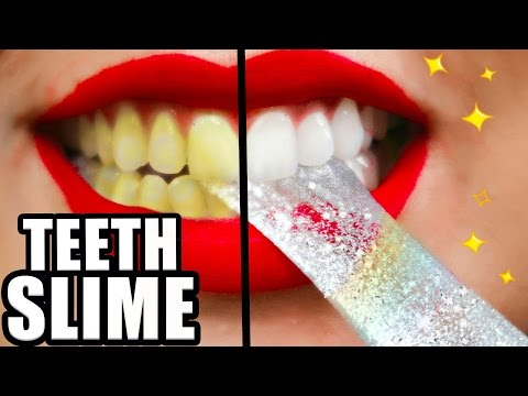 DIY Teeth Whitening SLIME! Whiter Teeth in 2 Minutes! Natalies Outlet