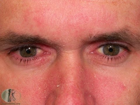 What Facial Seborrheic Dermatitis Looks Like | Eczema Seborrheic Dermatitis Rash Treatment 2015