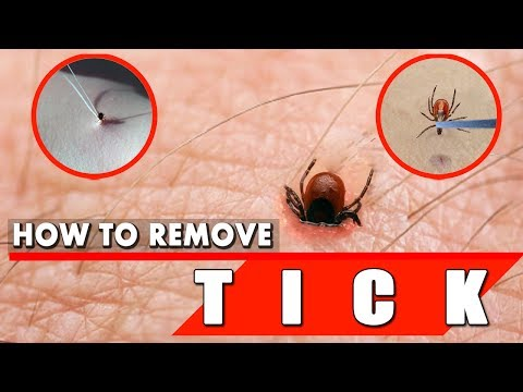 How to Remove a Tick Safely and Quickly – Tick Removal