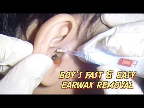 Boy's Fast & Easy Earwax Removal