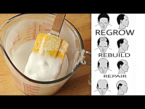 Baking Soda Miracle Rapid Hair Growth Results Shampoo!! MUST WATCH