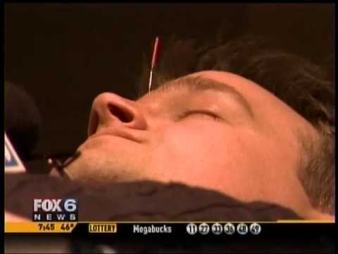 Acupuncture: Facing Your Fear of Needles (Milwaukee Acupuncture & Holistic Health Associates)