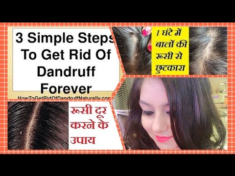 Miracle Cure For Dandruff & Hair Fall | MAGICAL HOME REMEDY to TREAT DANDRUFF at HOME | JSuper Kaur