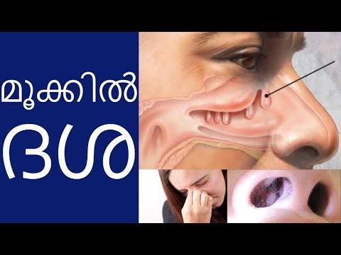 Cure Polyp Nose / Sinusitis Naturally | Home Remedy | Mohanan Vaidyar | Malayalam