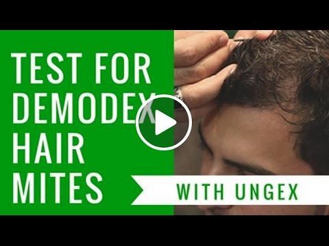 Test for Demodex Hair Mites