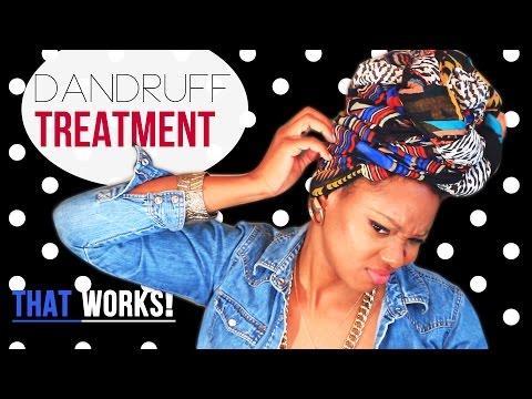 Itchy Scalp & Dandruff Treatment: How I cured My Flaky Scalp!   BorderHammer