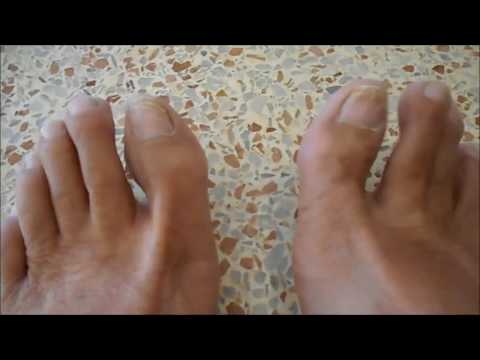 The story of bruised toenails - an 11 month saga