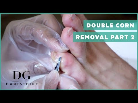 Corn Removal with callus - Double corn Part 2 (Left Foot)