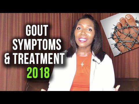 Gout Symptoms and Treatment [2018]