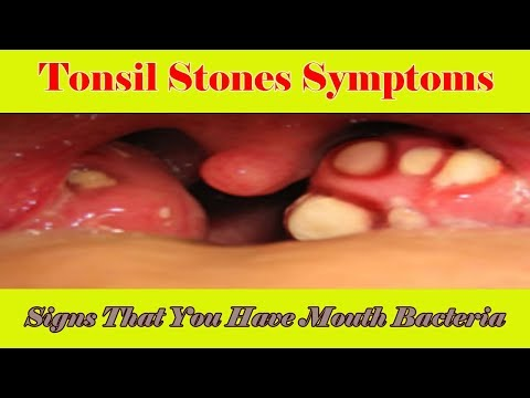 Tonsil Stones Symptoms: Signs That You Have Mouth Bacteria Infection