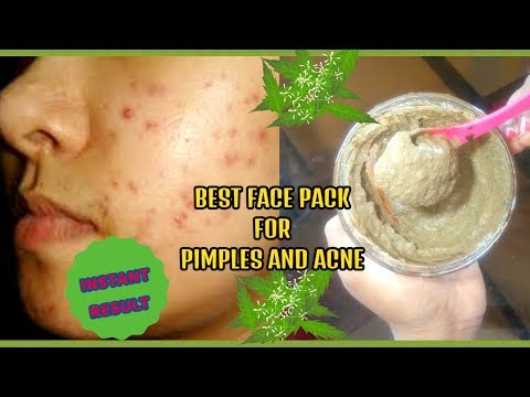 Best face pack for pimples and acne problems