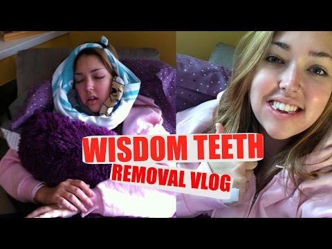 WISDOM TEETH REMOVAL | + AFTER/HEALING  | Erika Anderson