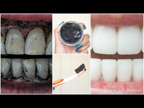 DIY CHARCOAL Teeth Whitening│How To Make Charcoal Toothpaste at Home For White Teeth in MINUTES!